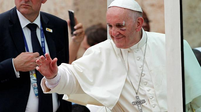 Pope Francis with his injured face